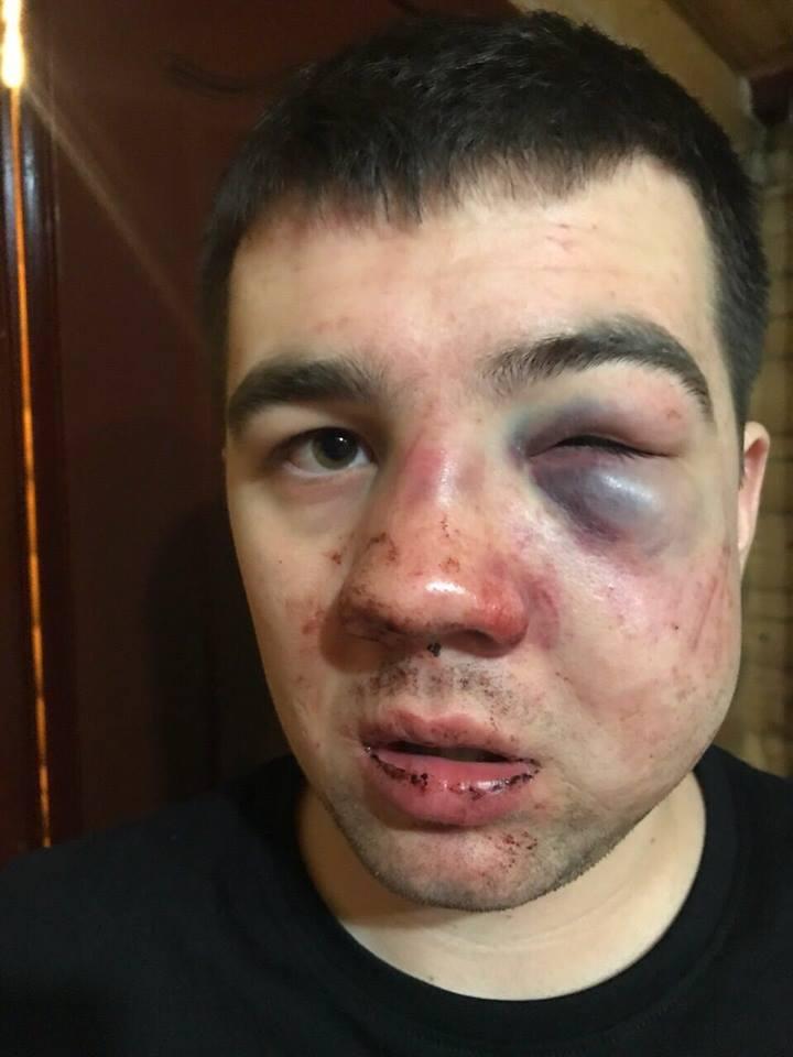 На «Буковелі» охорона знову жорстоко побила одного із відпочивальників, який виявився сином впливового депутата – ЗМІ (фото)