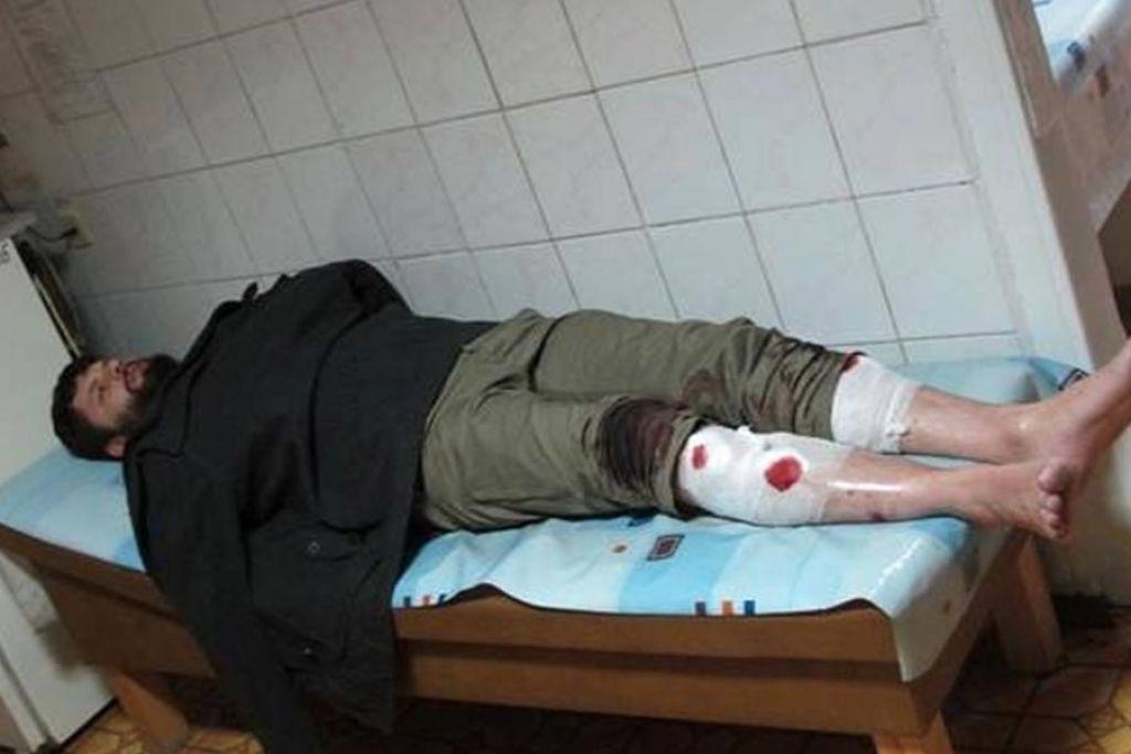За 5 років франківська поліція так і не знайшла винних у побитті активіста Євромайдану